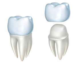 Kronen sind als Zahnersatz notwendig, wenn große Teile des Zahns beschädigt sind.